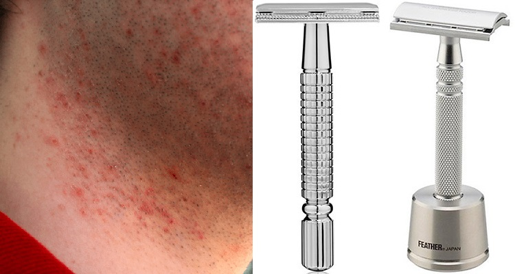Best Safety Razors For Sensitive Skin When The Tough Get Gliding